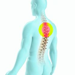 Особенности остеохондроза грудного отдела