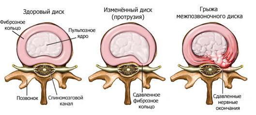 Гимнастика для остеохондроза всех отделов