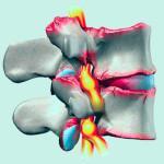 Остеохондроз: симптомы и лечение