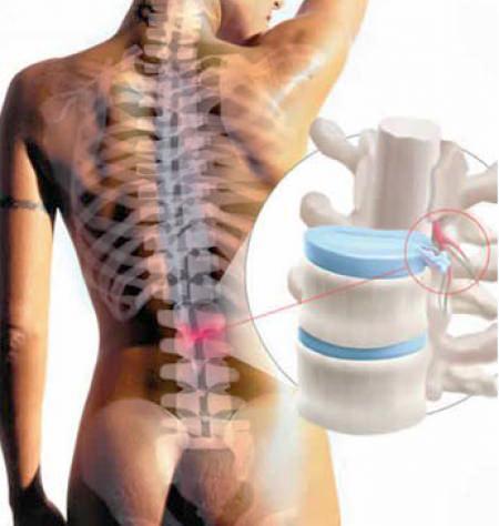 Позвоночная грыжа симптомы и лечение