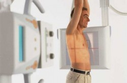 рентген поясничного отдела позвоночника