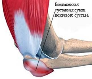 воспаление сустава локтя лечение народными средствами