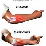 Лечение локтевого эпикондилита народной медициной