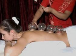 Лечение остеохондроза с помощью баночного массажа