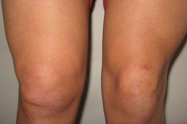 Выпот в коленном суставе причины появления симптомы и лечение