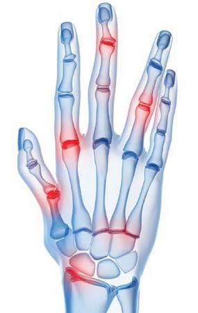 Признаки артрита рук