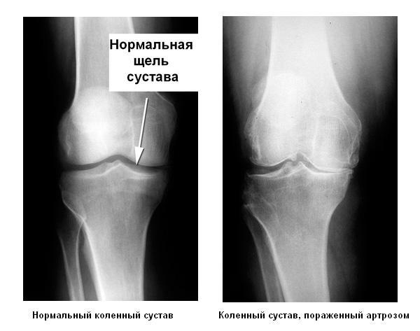 Мазь от боли в пояснице украина