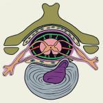 Грыжа межпозвоночного диска при остеохондрозе