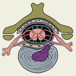грыжа межпозвоночного диска