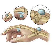 Лечение гигромы лучезапястного сустава