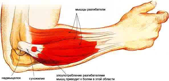 растяжение связок локтевого сустава после армрестлинга