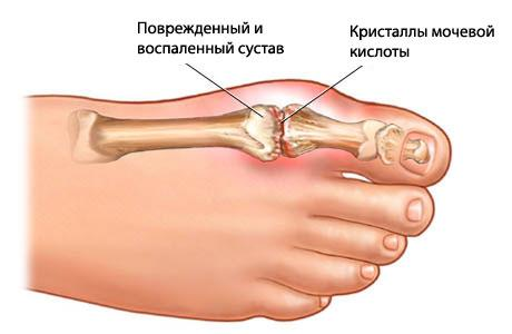Подагра на ногах: симптомы и признаки, лечение, массаж, народные ...