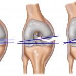 Растяжение связок плечевого сустава симптомы