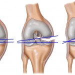 Лечение связок и сухожилий колена