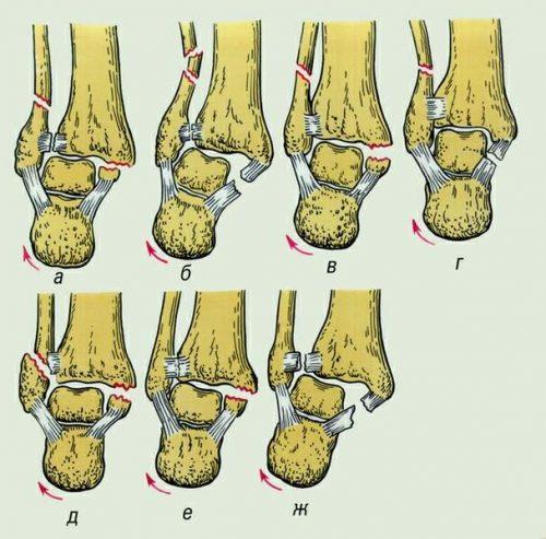 Что делать, если после падения появилось подозрение на перелом голеностопного сустава?