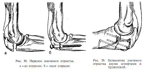 Перелом локтевого сустава: лечение и профилактика
