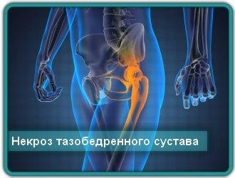 Лечение некроза тазобедренного сустава