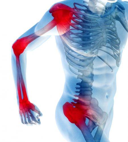 Блуждающие боли в суставах