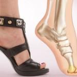 Как лечить шишку на большом пальце ноги