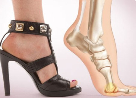 положение ноги на каблуке