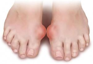 Артрит пальца ноги