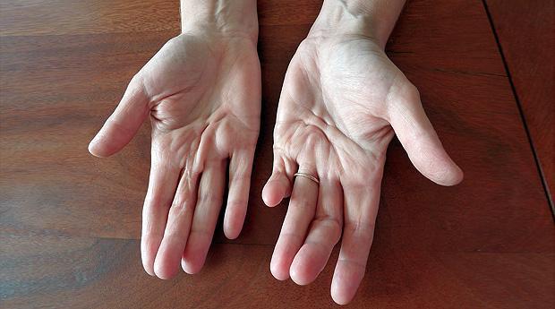 суставы пальцев рук деформация