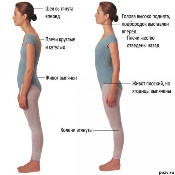 Лечение остеохондроза позвоночника