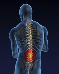 Зарядка при остеохондрозе поясничного отдела