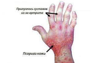 Псориатический артрит: причины, симптомы, лечение традиционное и народными средствами