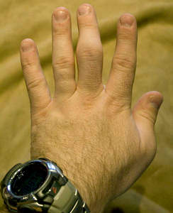 Распух сустав на пальце руки лечение