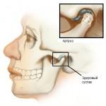 Артрит челюстного сустава лечение народными средствами способы и методы