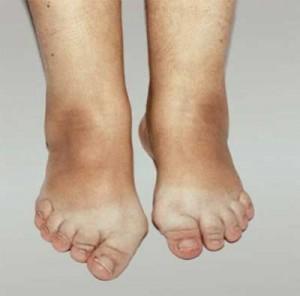 Как забыть о болях в суставах и артрите