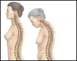 Болезнь Бехтерева у женщин: причины, симптомы, лечение