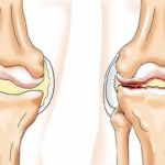 Лечение реактивного артрита