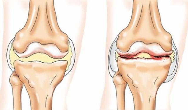 Реактивный артрит: причины, симптомы и лечение