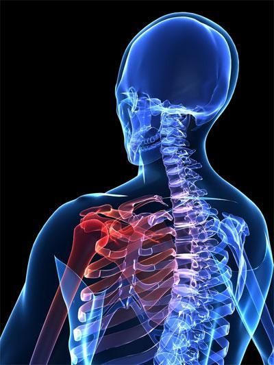 Лечение острой боли плечевого сустава
