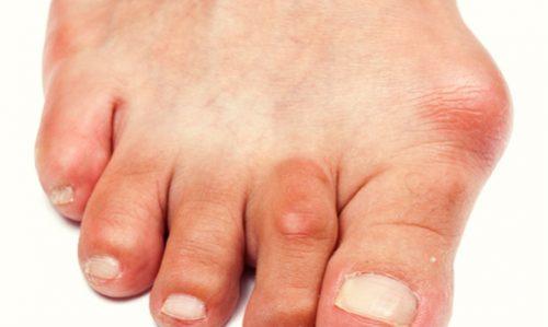 Что такое бурсит большого пальца?