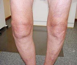 Устранение контрактуры коленного сустава лфк при артрозе голеностопного сустава