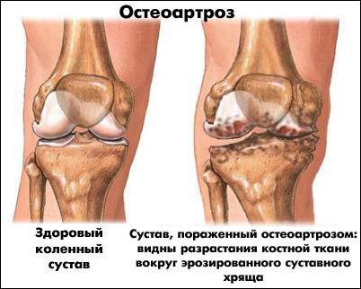 артроз коленного сустав народные средства лечения