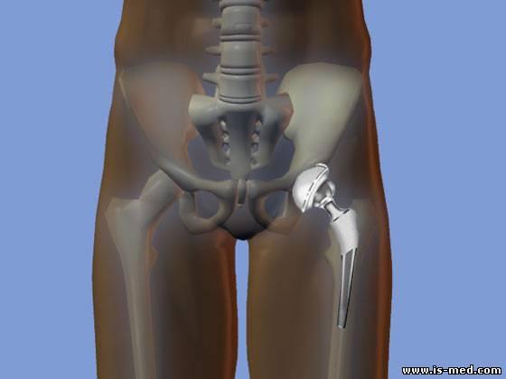 эндопротезирование тазобедренного сустава в спб стоимость