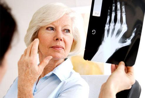 Лечение ревматоидного полиартрита
