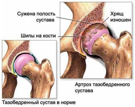 Лечение артроза тазобедренного сустава: причины, симптомы ...
