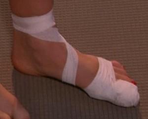 Травмы пальцев ног