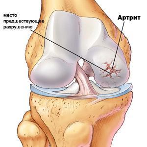 Травматический и посттравматический артрит: симптомы и методы ...