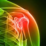 Лечение инфекционного артрита