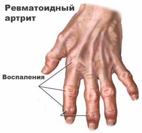 Лечение остеохондроза межпозвонковых грыж