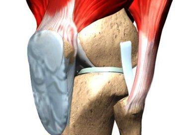 Лигаментоз колена