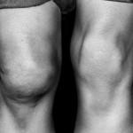 Боль и опухоль в колене