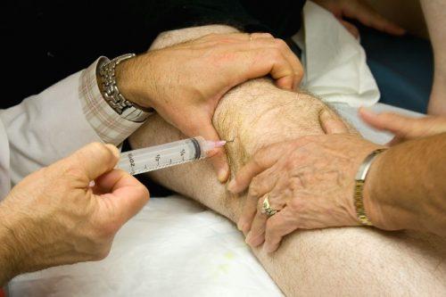Препараты для лечения артроза колена