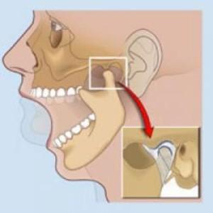 Шишка на челюстном суставе лечение позвоночника и суставов. долголетие и здоровье